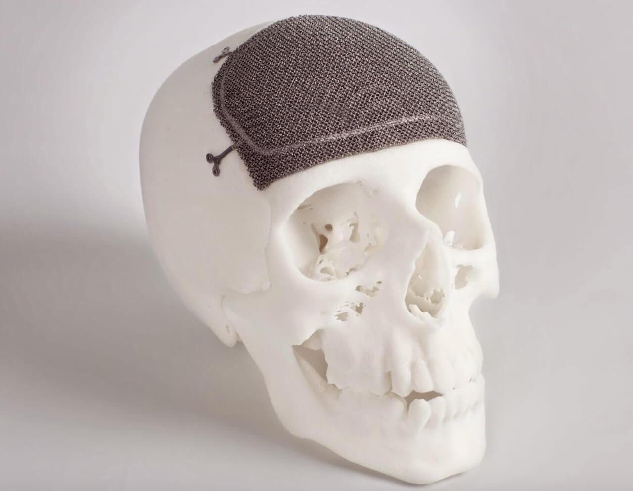 ebm 3d printed skull implant
