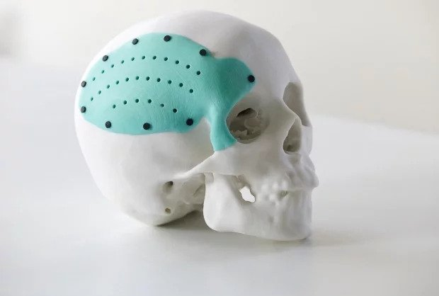 Model of a skull with a 3D printed plate
