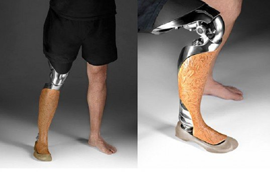 3D Printed Customized Prosthetics