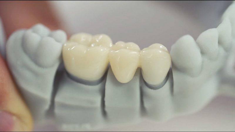 3D Printed Dental Crowns