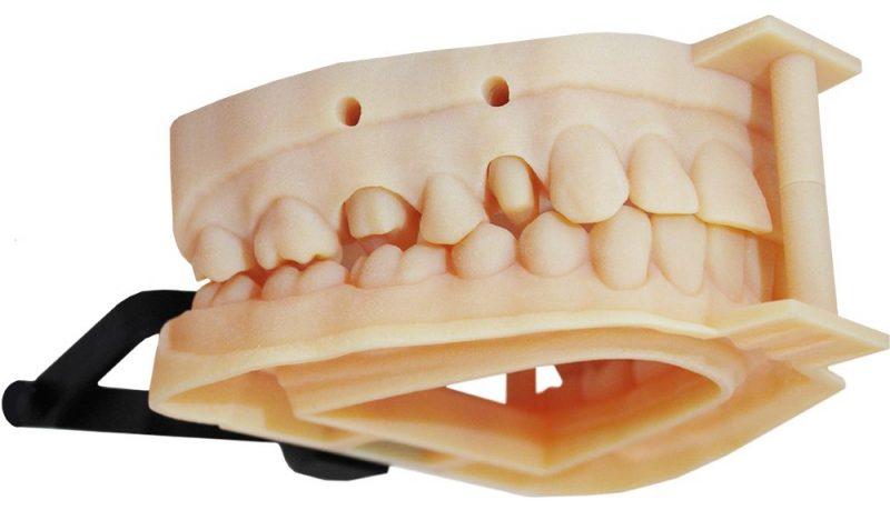 3D Printed Dental Models