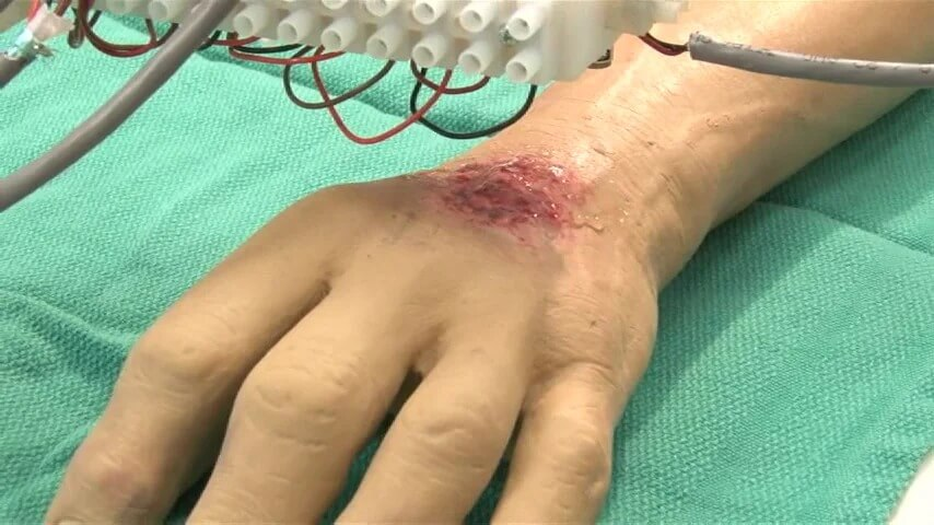 3D Printing Medical Applications to Treat Burned Patients