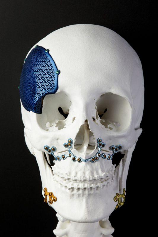 3D Printing skull Bone