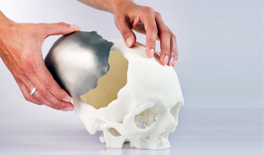 3d printed medical bones
