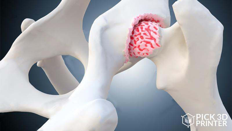 3D Printed Cartilage