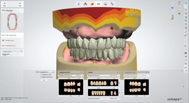 Vida HD Crown & Bridge 3D Printer software