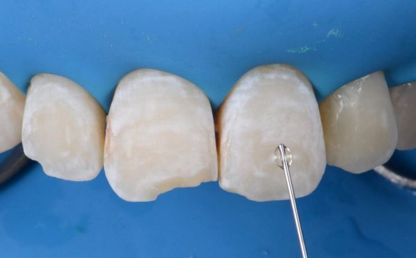 Devices and Products Related to Dentistry